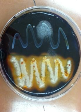(c) emilystarblog 2015 Bacteria (not C. dif)